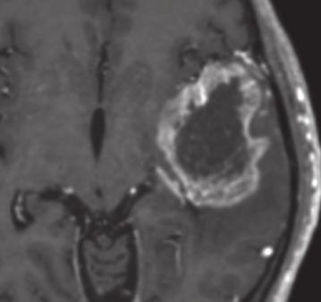 glioblastoma ase of a 38 year old female